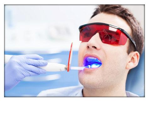 Blanqueamiento Dental Clínica Herrera Pasencia