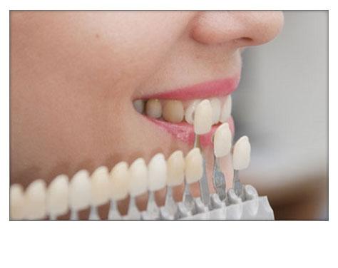 Carillas Dentales Clínica Dental Herrera Plasencia