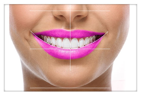 Diseño de Sonrisas Clínica Dental Herrera Plasencia