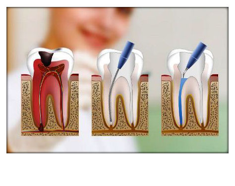 Endodoncia Clínica Dental Herrera Plasencia