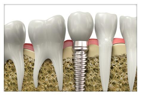 Implantes Dentales Clínica Dental Herrera Plasencia