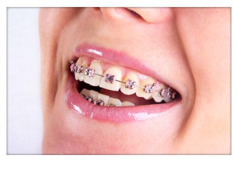 Ortodoncia Clínica Dental Herrera Plasencia