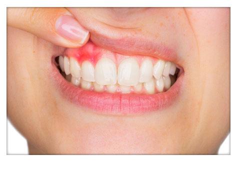 Periodoncia Clínica Dental Herrera Plasencia