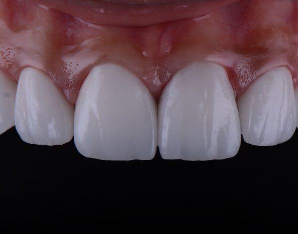 Rehabilitación Oral mediante Prótesis
